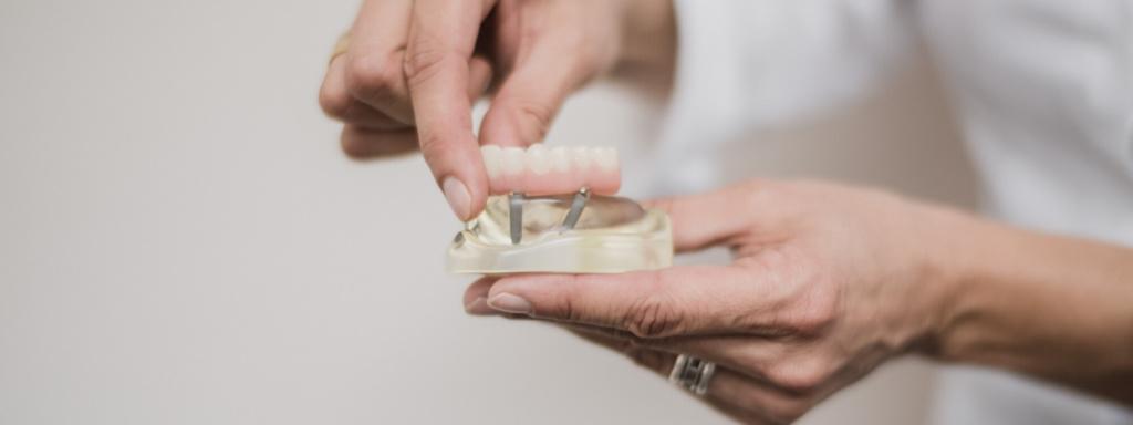 All-on-4 - Zertifizierte Praxisklinik für Chirurgie und Implantate Pforzheim