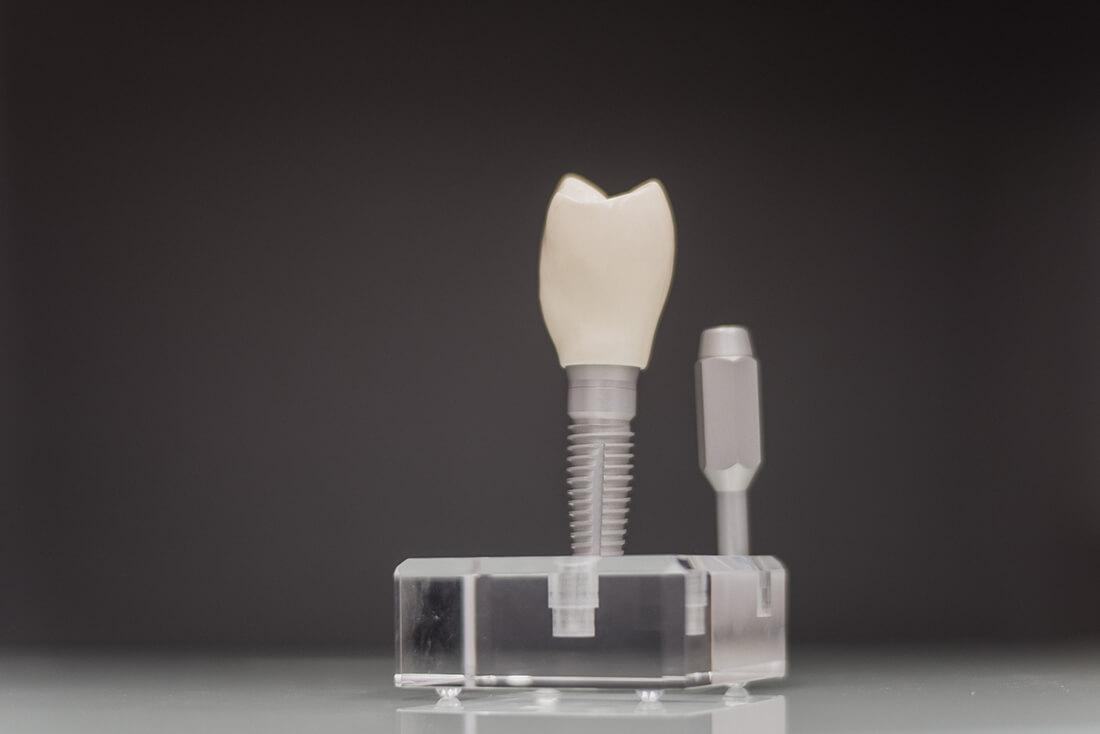 Leistungen Implantate Pforzheim