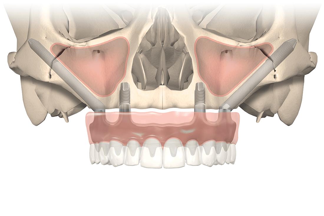 Mund-Kiefer-Gesichtschirurgie-Pforzheim-Zygoma-Implantat